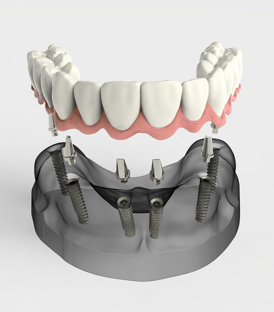 Prothèse dentaire complète fixée sur implants