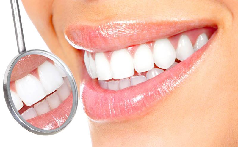 blanchiment des dents en espagne