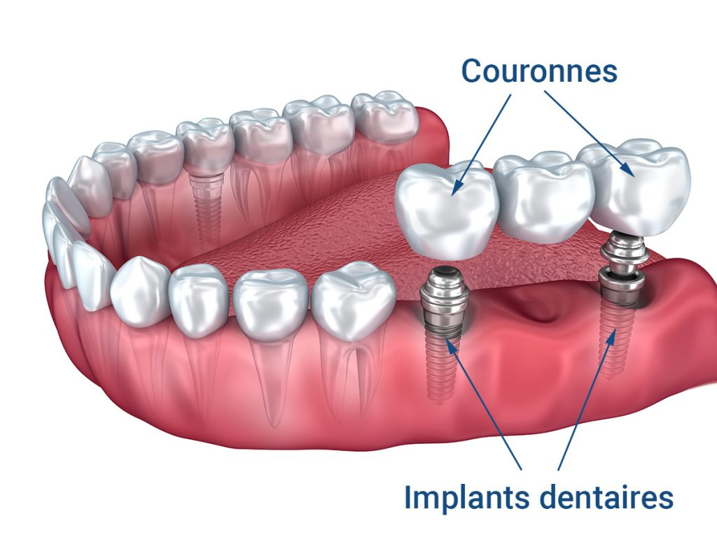bridge dentaire de 3 dents
