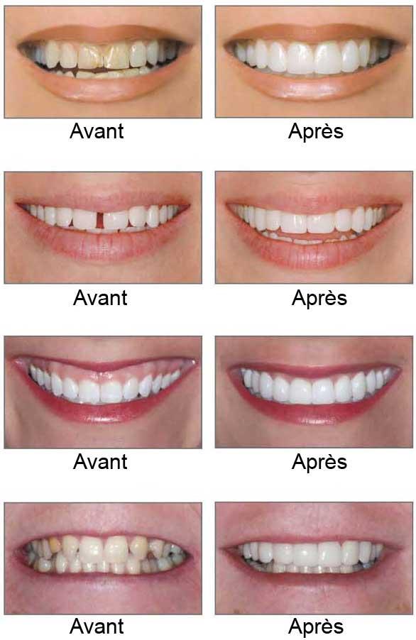 meilleur blanchiment des dents