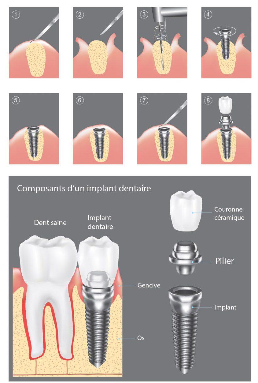 implants dentaires en espagne au meilleur prix uedentaire. Black Bedroom Furniture Sets. Home Design Ideas