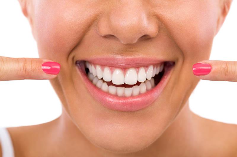Femme montrant ses dents parfaites